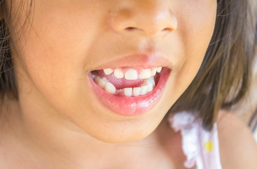 Apa yang Harus Dilakukan Jika Gigi Si Kecil Patah?